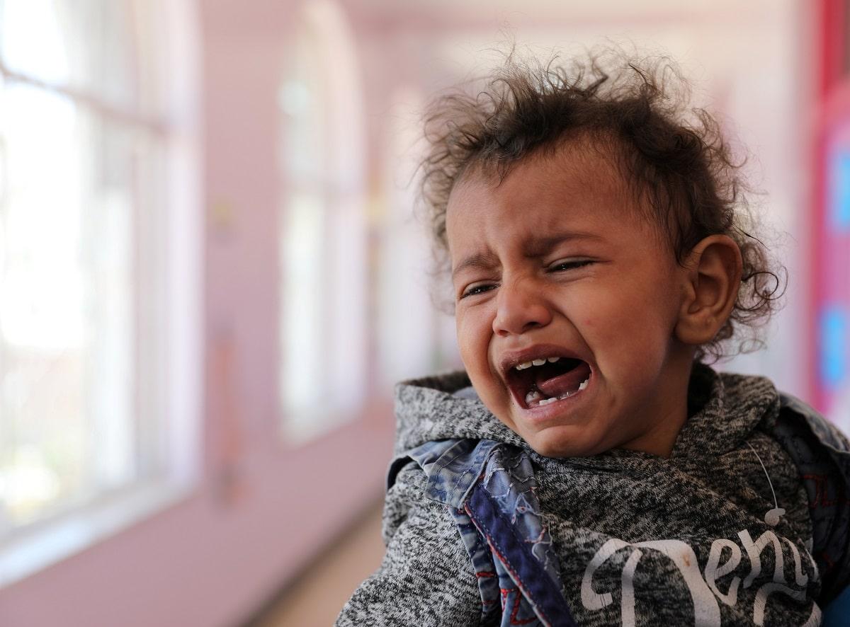 Podvyživené děti v Jemenu. Foto: Reuters