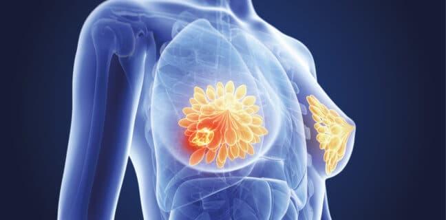 Aspirin jako potenciální léčba agresivní formy rakoviny prsu